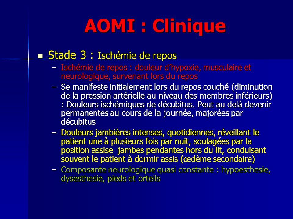 AOMI : Clinique Stade 3 : Ischémie de repos