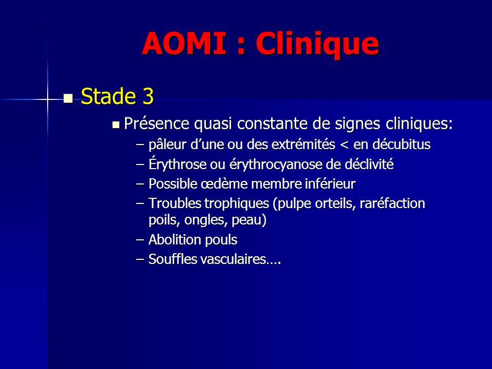 AOMI : Clinique Stade 3 Présence quasi constante de signes cliniques: