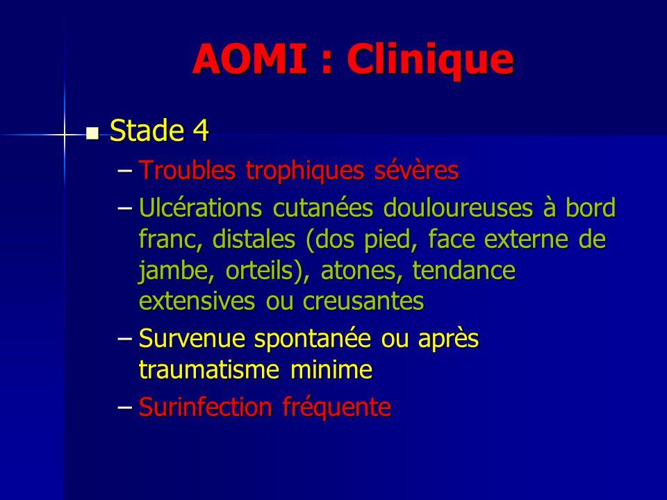 AOMI : Clinique Stade 4 Troubles trophiques sévères