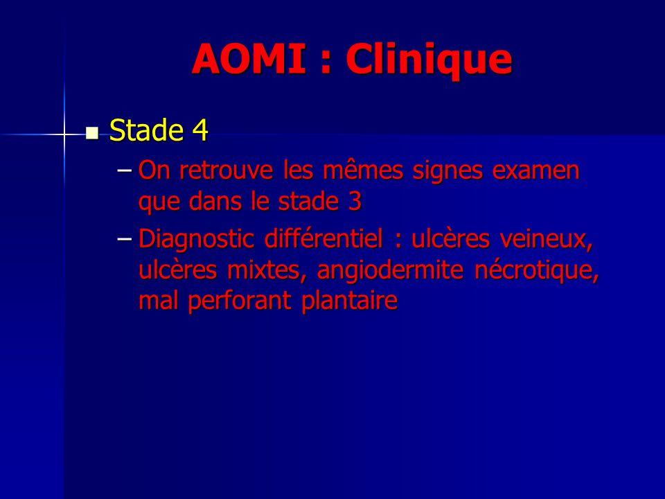 AOMI : Clinique Stade 4. On retrouve les mêmes signes examen que dans le stade 3.