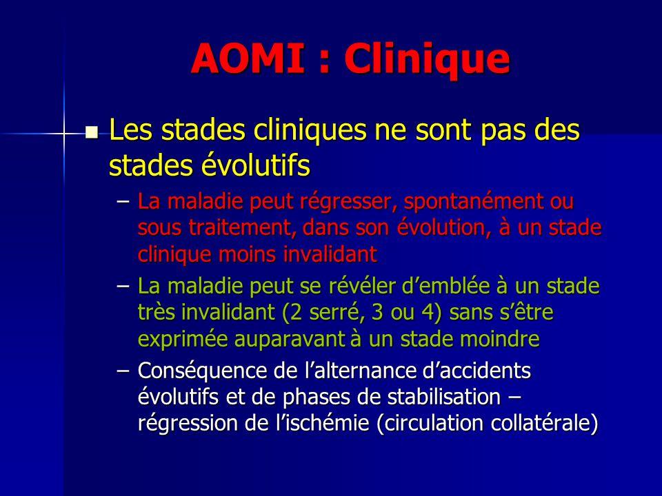 AOMI : Clinique Les stades cliniques ne sont pas des stades évolutifs