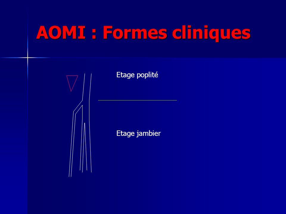 AOMI : Formes cliniques