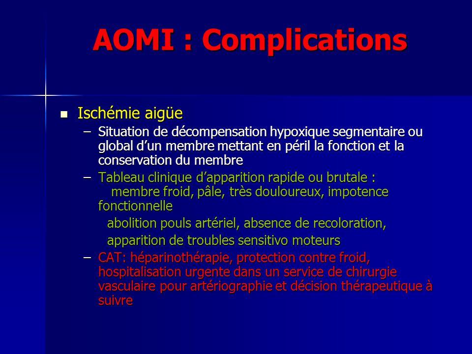 AOMI : Complications Ischémie aigüe