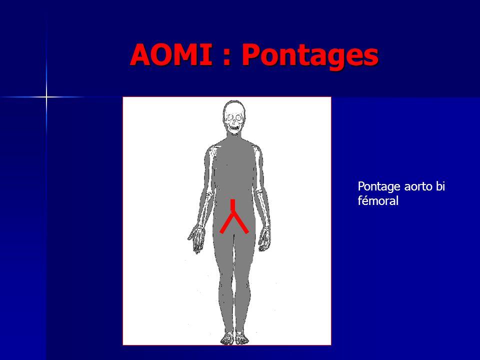 AOMI : Pontages Pontage aorto bi fémoral