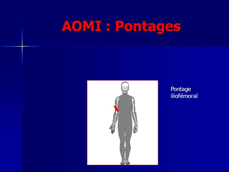 AOMI : Pontages Pontage iliofémoral