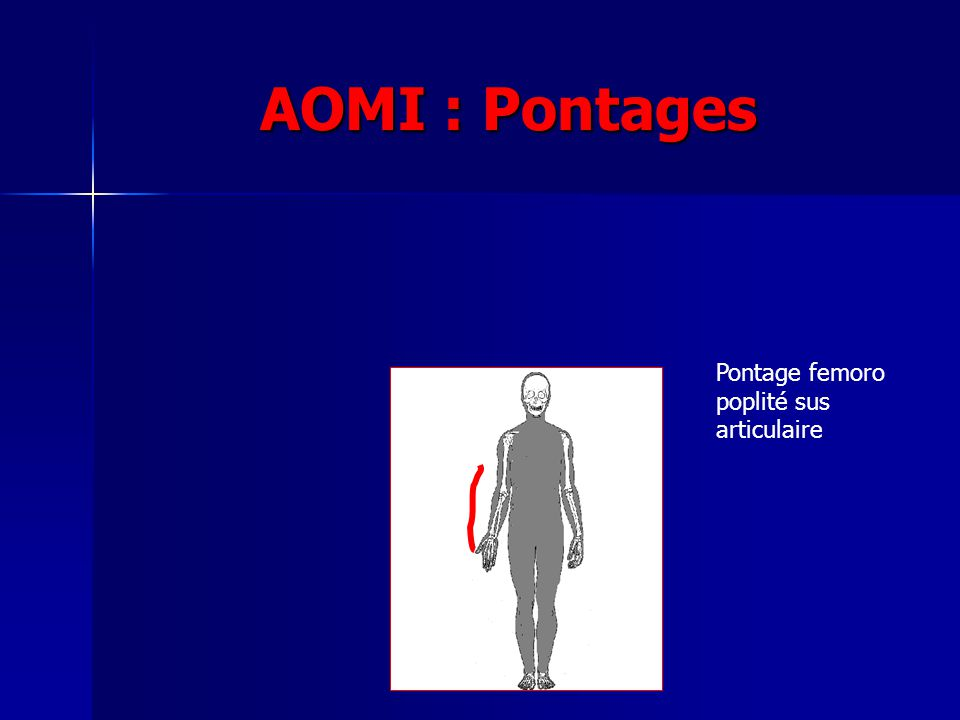 AOMI : Pontages Pontage femoro poplité sus articulaire