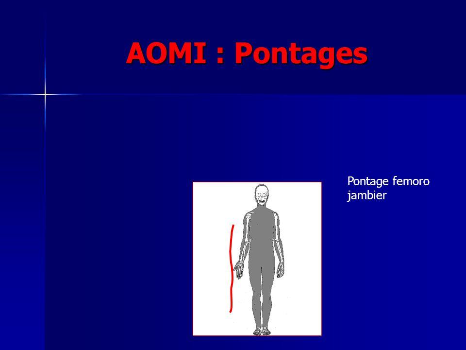 AOMI : Pontages Pontage femoro jambier