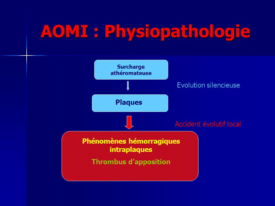 AOMI : Physiopathologie