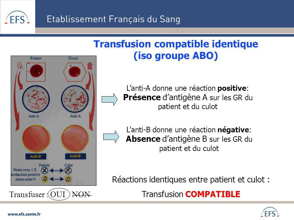 Transfusion compatible identique (iso groupe ABO)