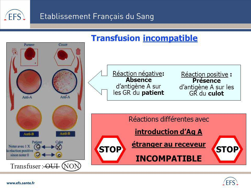 Transfusion incompatible