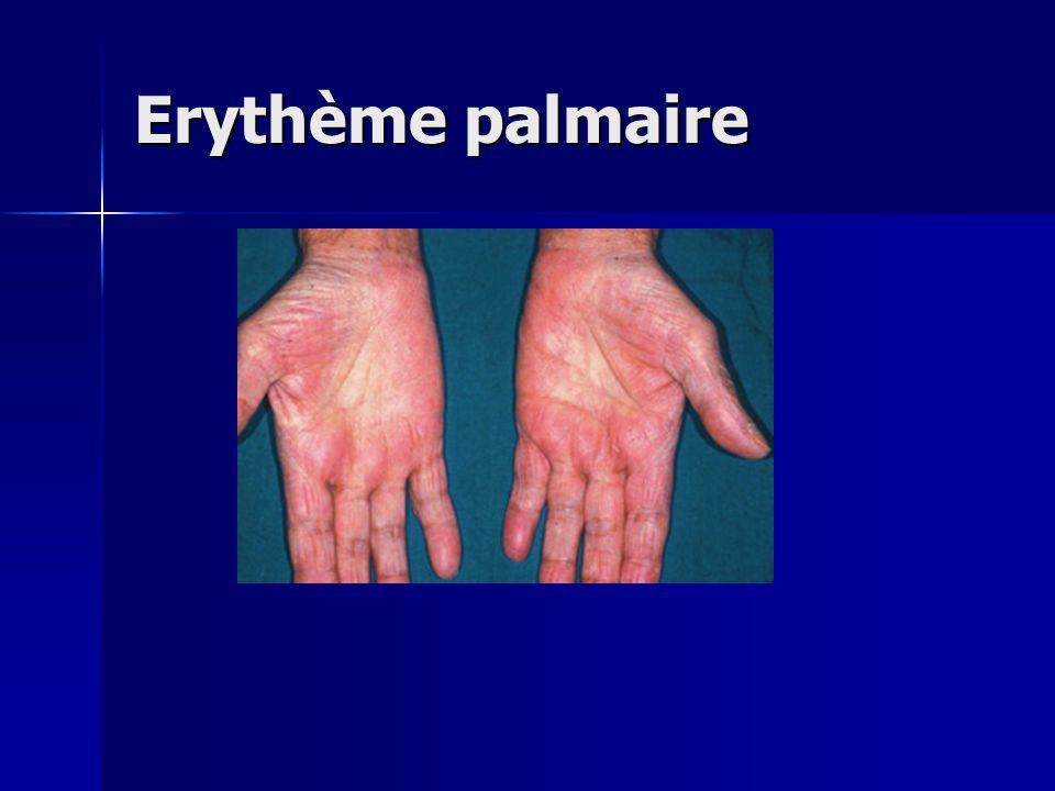 Erythème palmaire