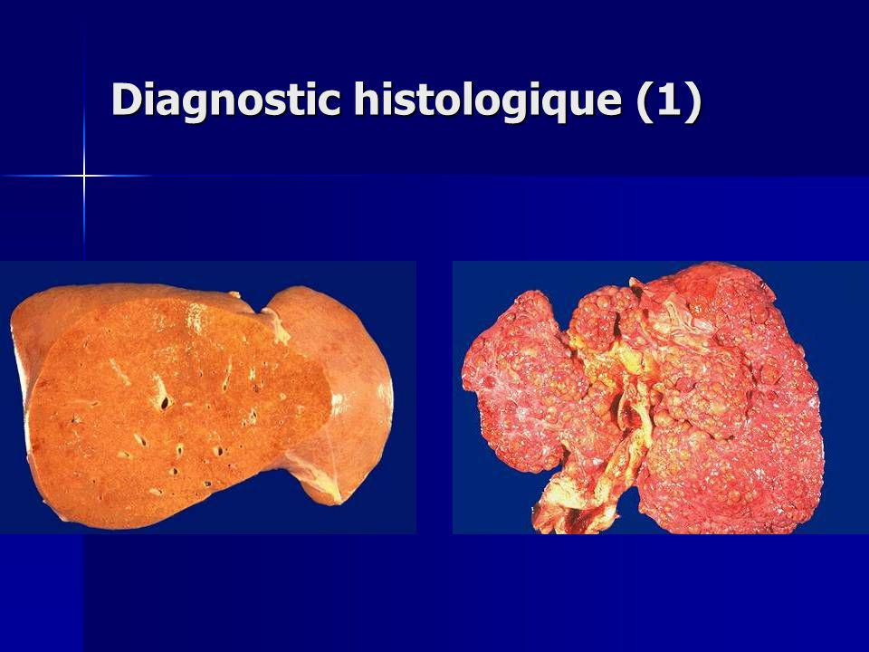 Diagnostic histologique (1)