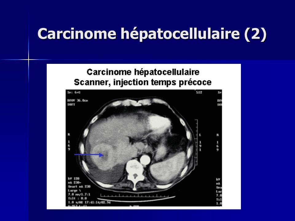Carcinome hépatocellulaire (2)