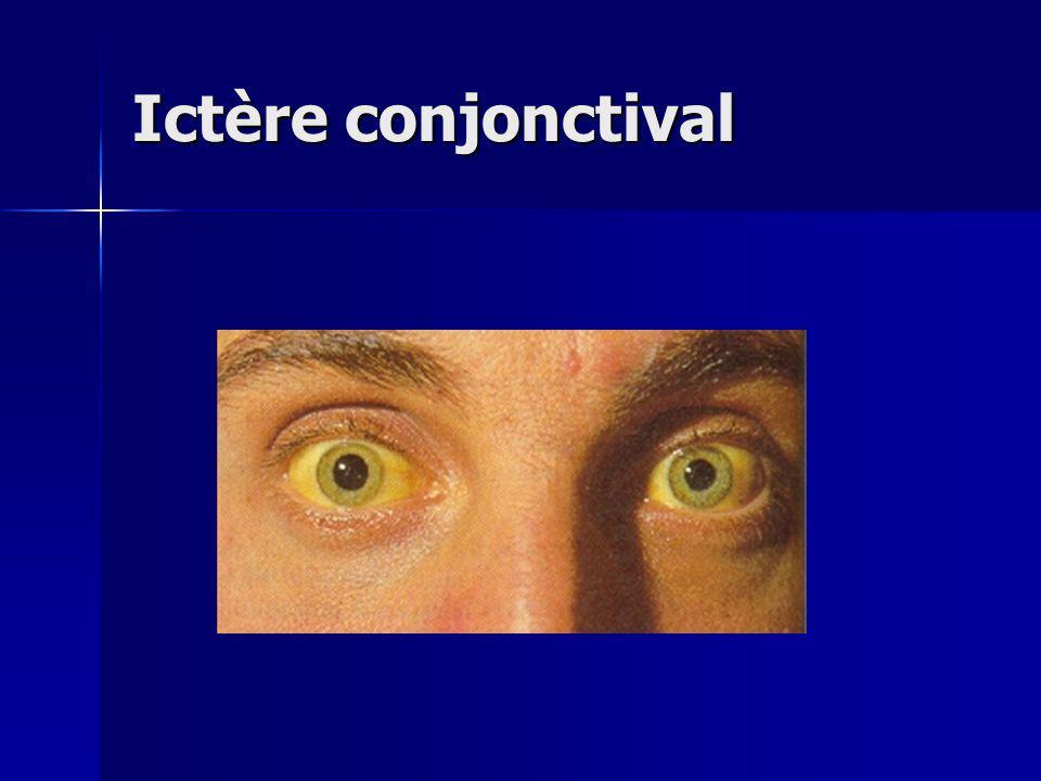 Ictère conjonctival