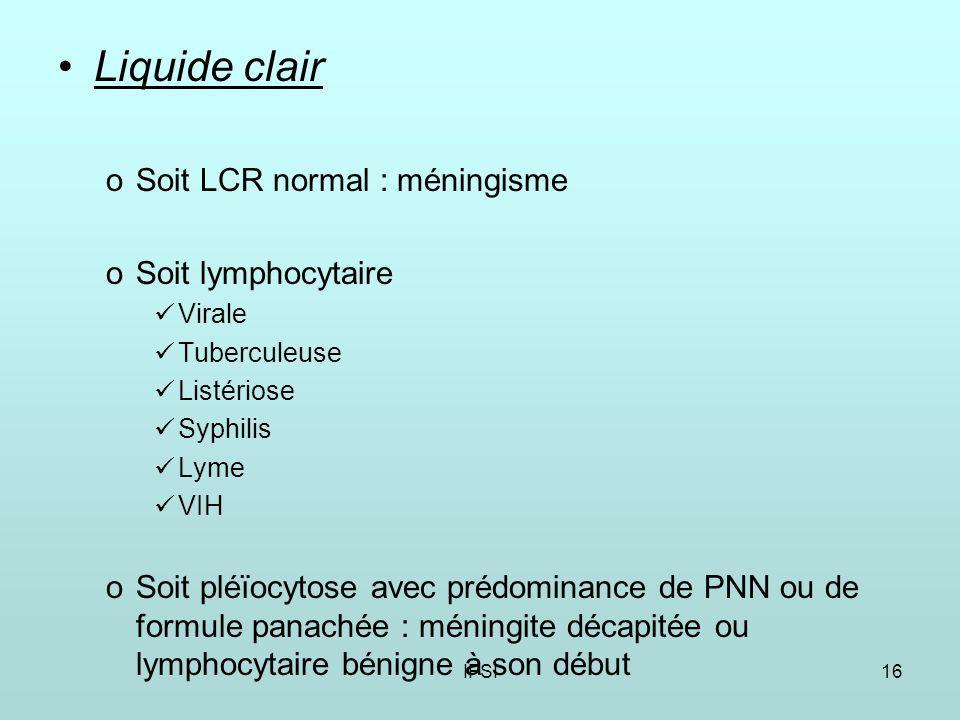 Liquide clair Soit LCR normal : méningisme Soit lymphocytaire