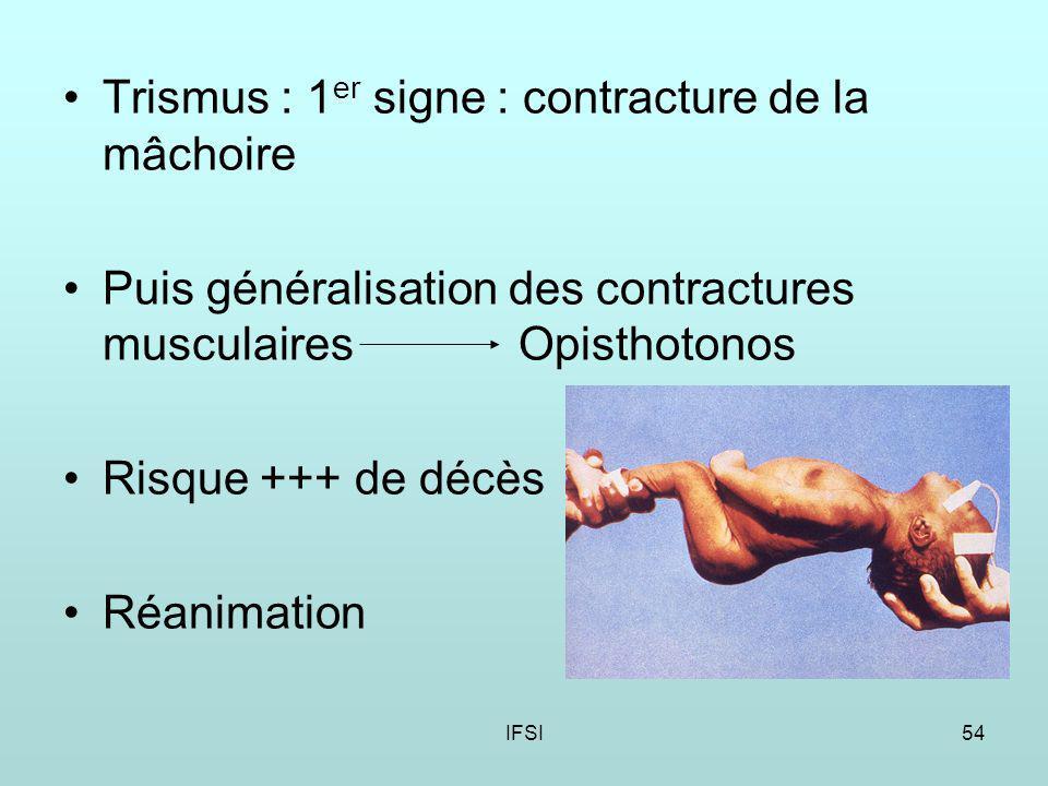 Trismus : 1er signe : contracture de la mâchoire