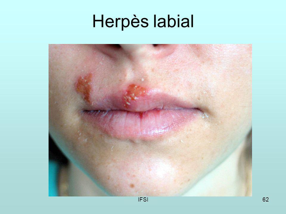 Herpès labial IFSI