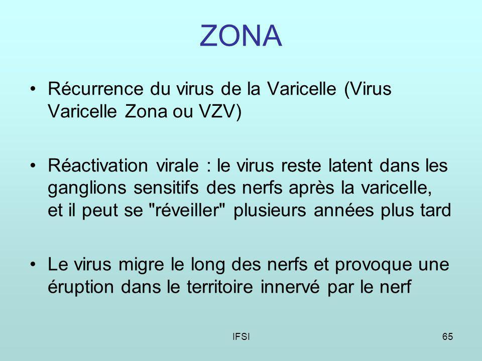 ZONA Récurrence du virus de la Varicelle (Virus Varicelle Zona ou VZV)