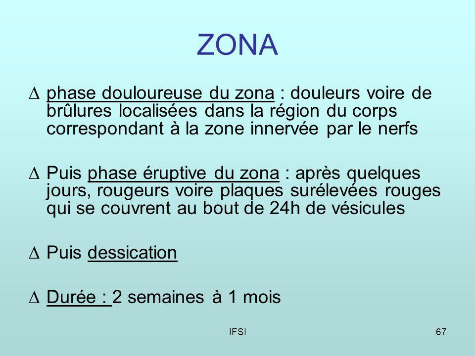 ZONA phase douloureuse du zona : douleurs voire de brûlures localisées dans la région du corps correspondant à la zone innervée par le nerfs.