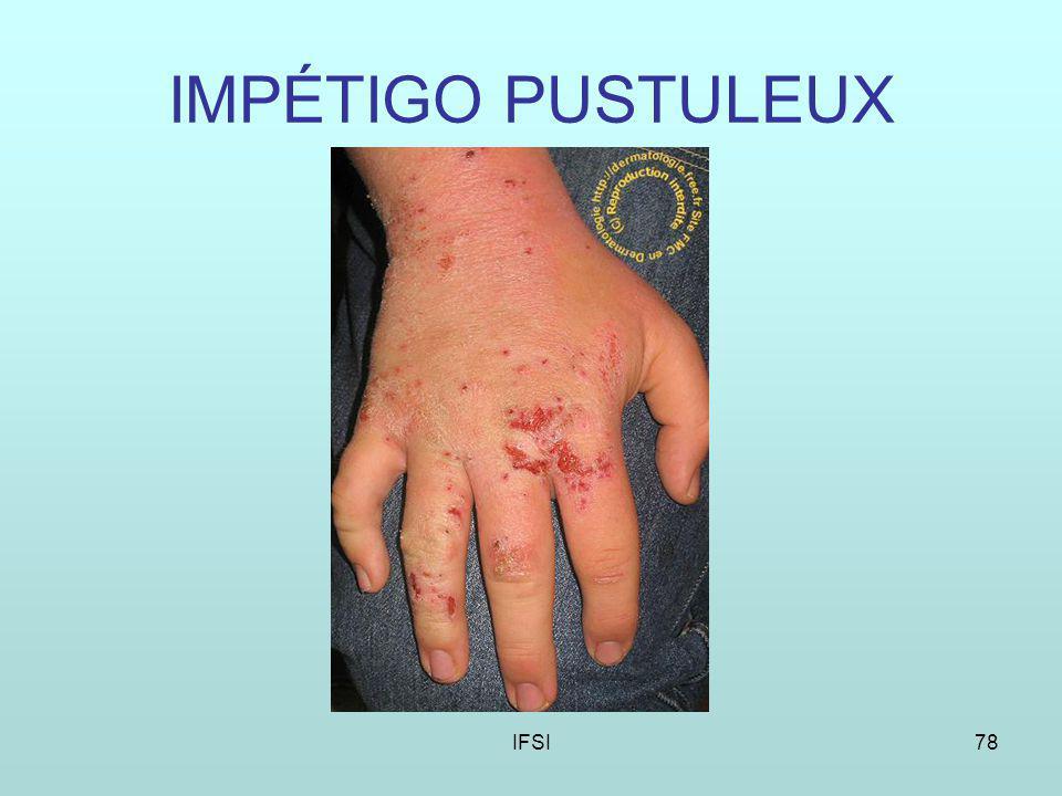 IMPÉTIGO PUSTULEUX IFSI