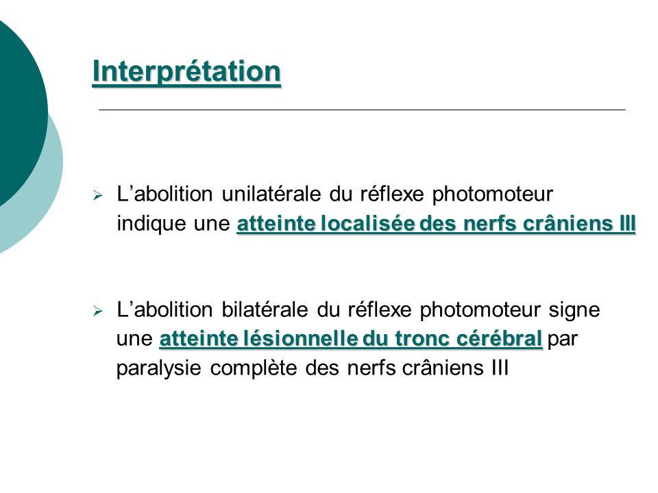 Interprétation L'abolition unilatérale du réflexe photomoteur