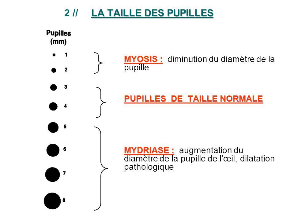 2 // LA TAILLE DES PUPILLES