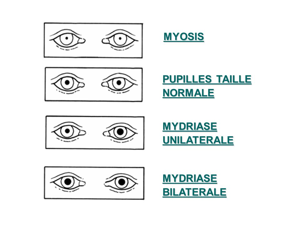 MYOSIS PUPILLES TAILLE NORMALE MYDRIASE UNILATERALE MYDRIASE BILATERALE