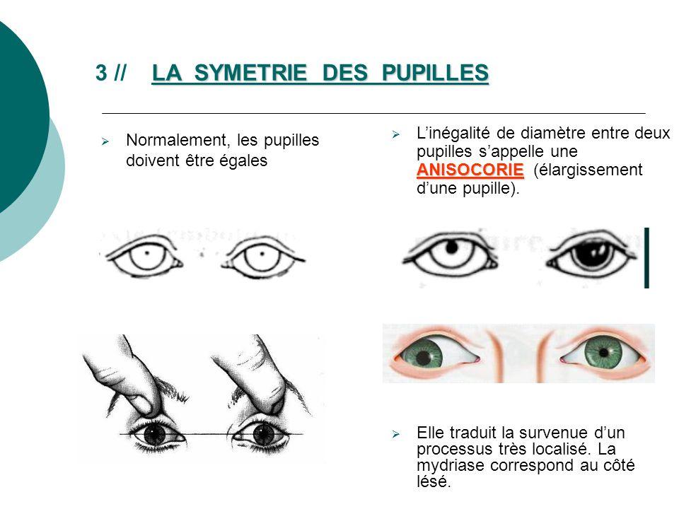 3 // LA SYMETRIE DES PUPILLES
