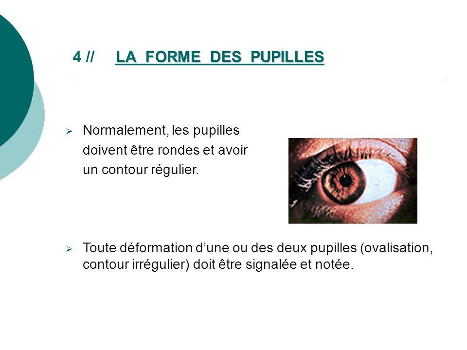4 // LA FORME DES PUPILLES