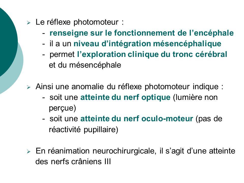 Le réflexe photomoteur :
