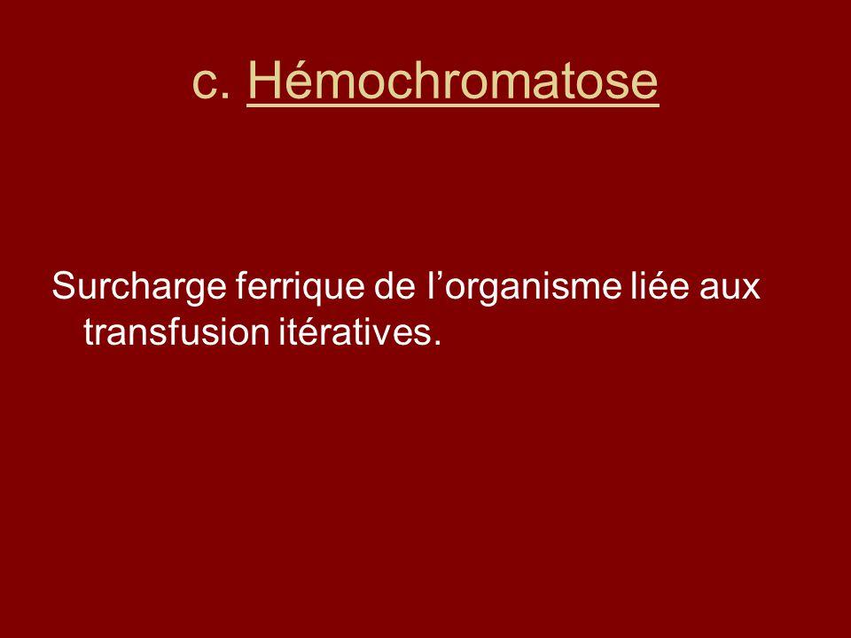 c. Hémochromatose Surcharge ferrique de l'organisme liée aux transfusion itératives.