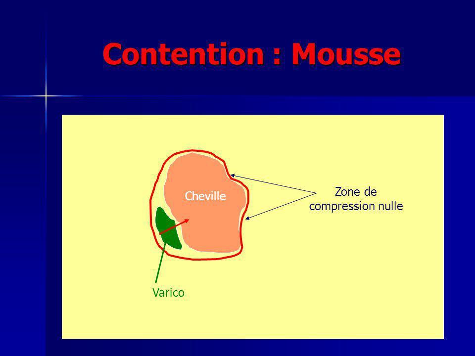 Zone de compression nulle