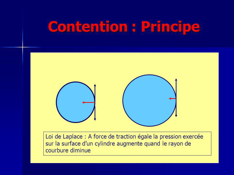 Contention : Principe