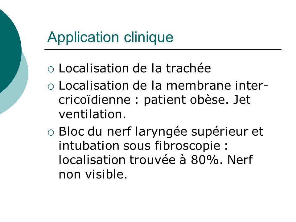 Application clinique Localisation de la trachée