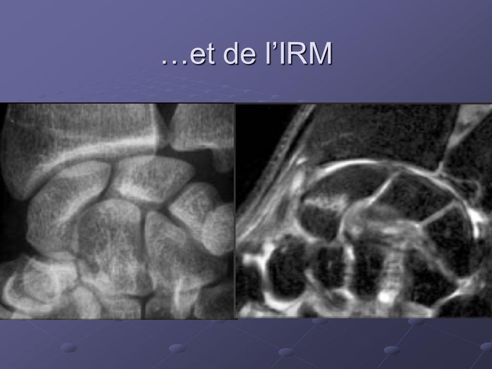 …et de l'IRM