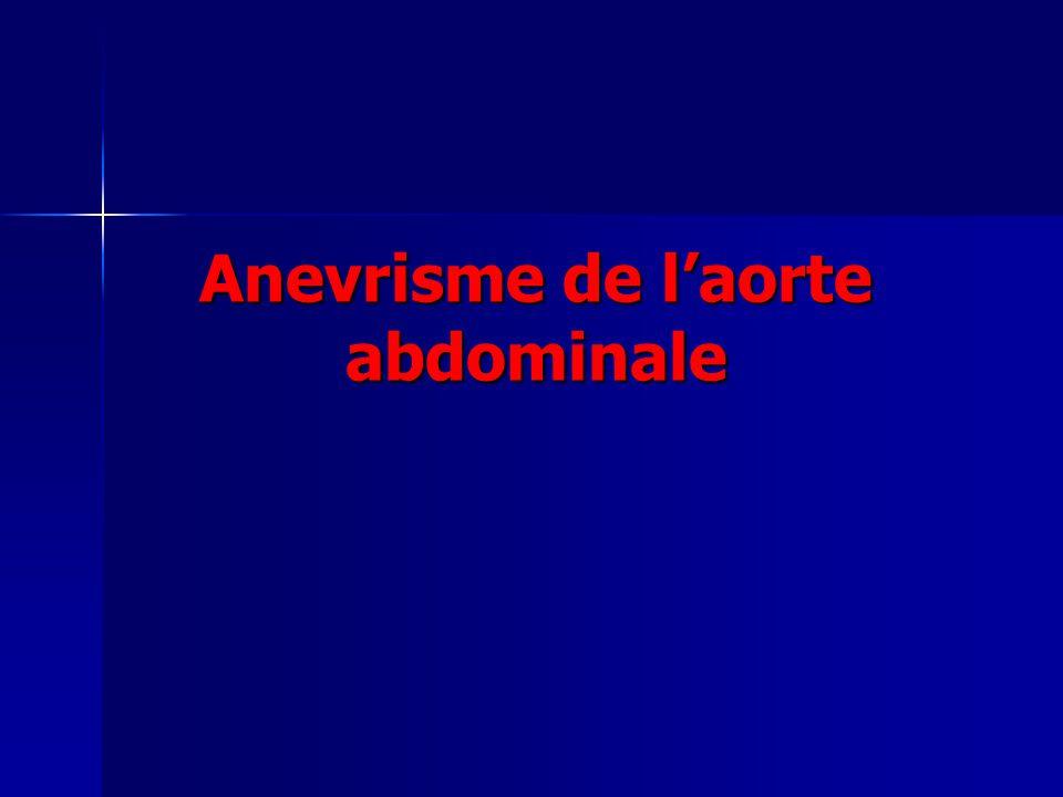 Anevrisme de l'aorte abdominale