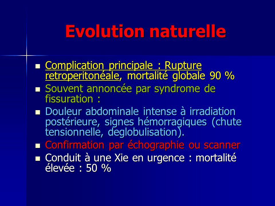 Evolution naturelle Complication principale : Rupture retroperitonéale, mortalité globale 90 % Souvent annoncée par syndrome de fissuration :