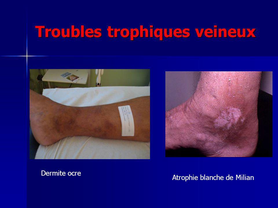 Troubles trophiques veineux
