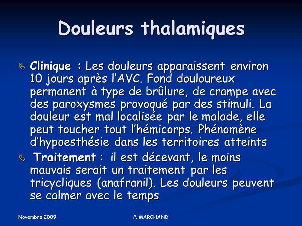 Douleurs thalamiques
