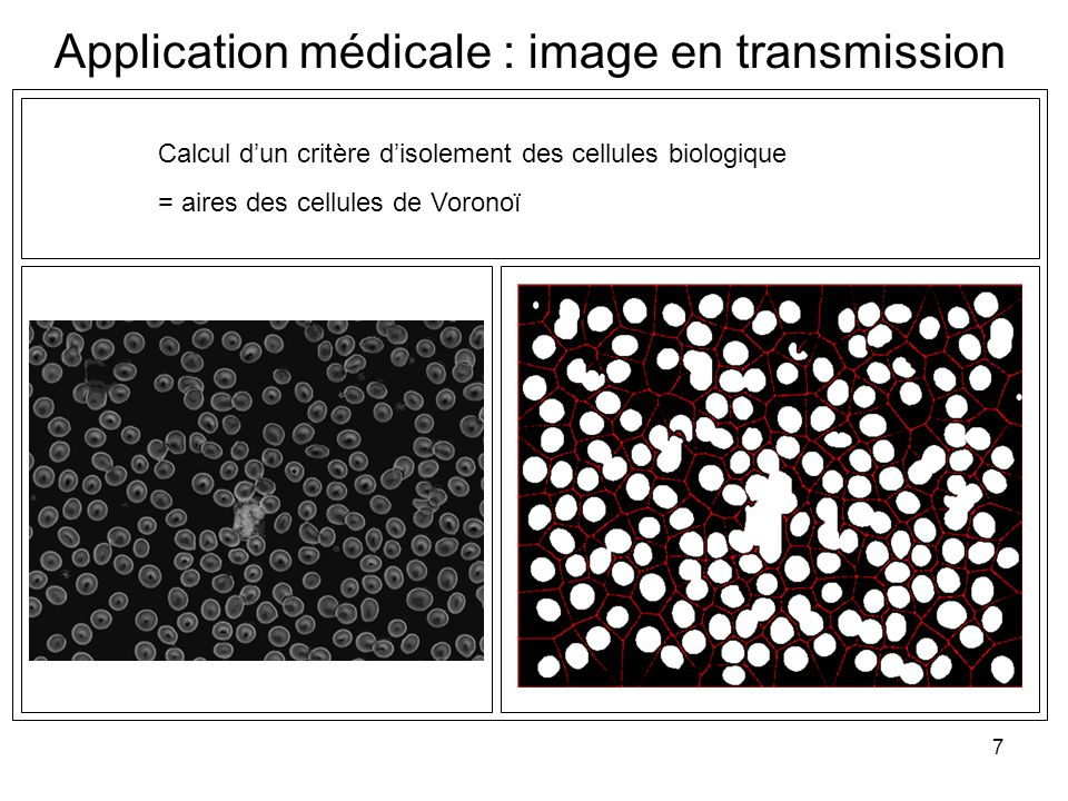 Application médicale : image en transmission