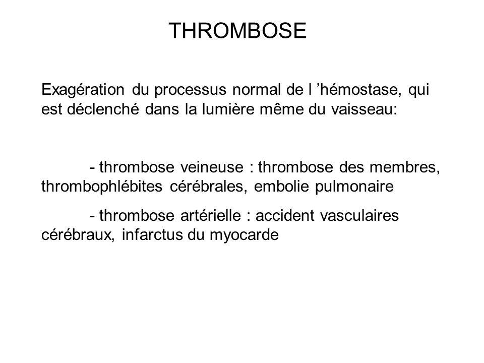 THROMBOSE Exagération du processus normal de l 'hémostase, qui est déclenché dans la lumière même du vaisseau: