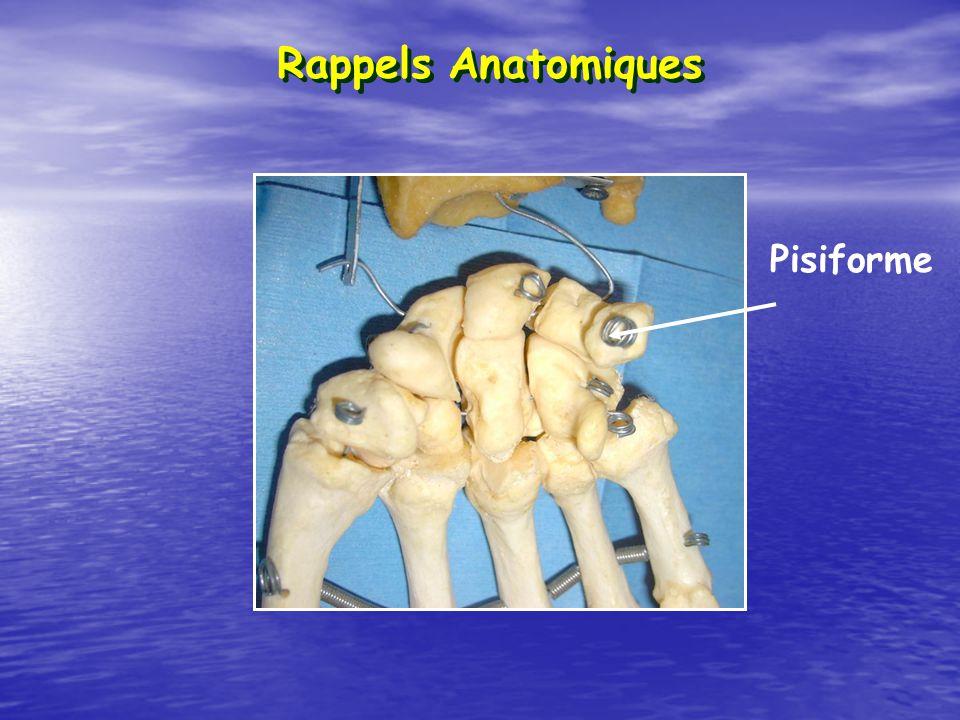 Rappels Anatomiques Pisiforme