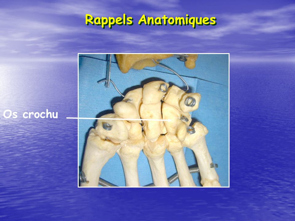 Rappels Anatomiques Os crochu