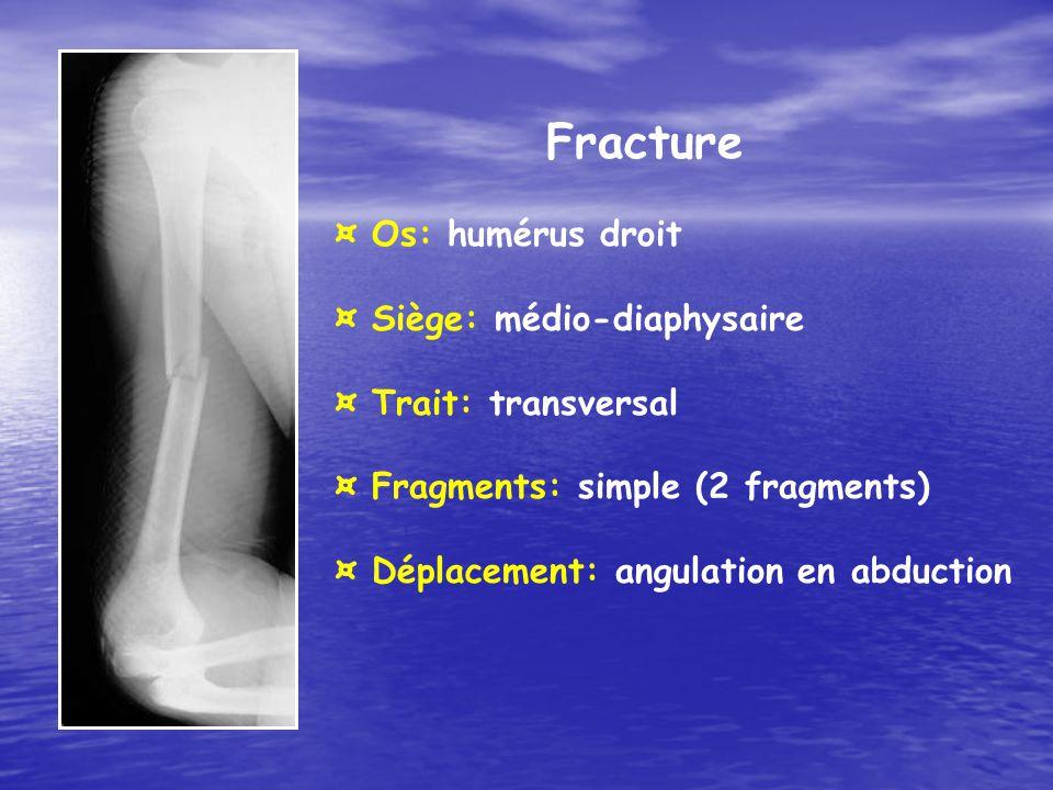 Fracture ¤ Os: humérus droit ¤ Siège: médio-diaphysaire