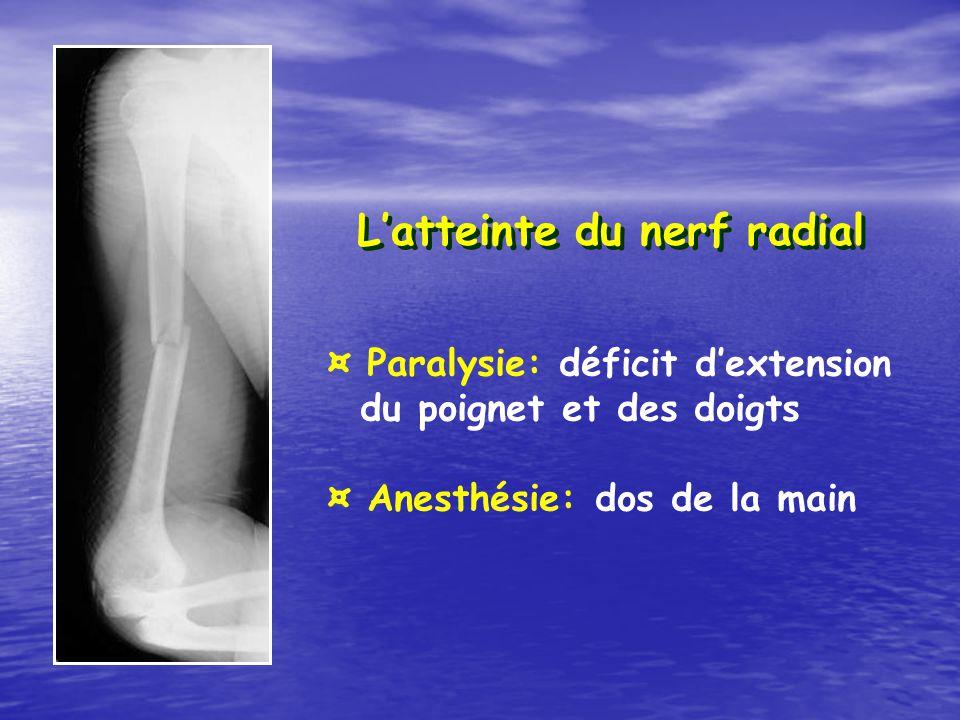 L'atteinte du nerf radial