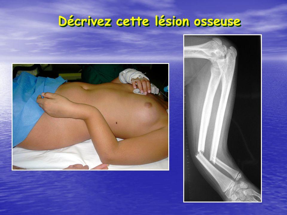 Décrivez cette lésion osseuse