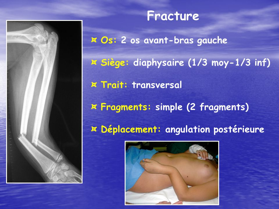 Fracture ¤ Os: 2 os avant-bras gauche