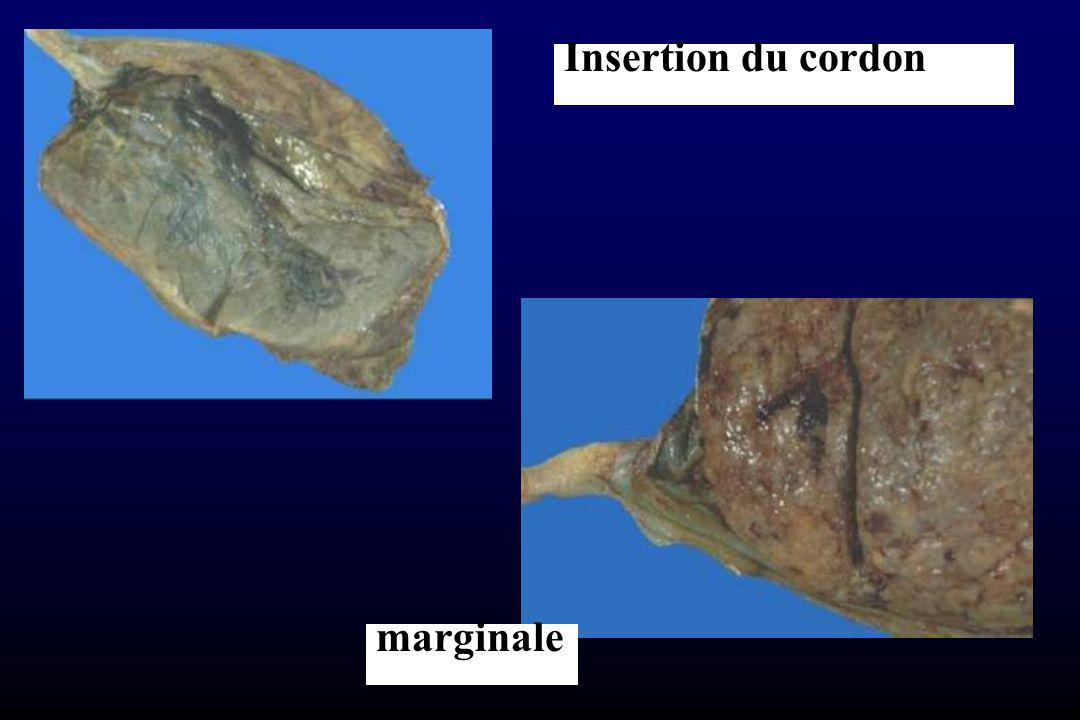 Insertion du cordon marginale