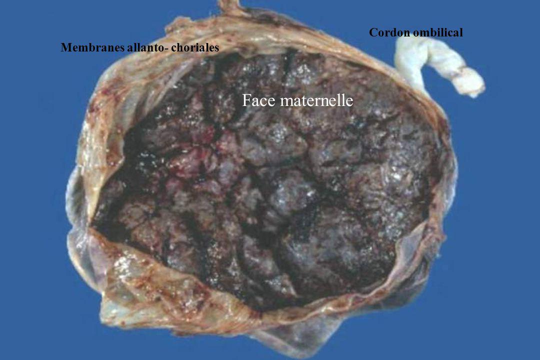 Cordon ombilical Membranes allanto- choriales Face maternelle