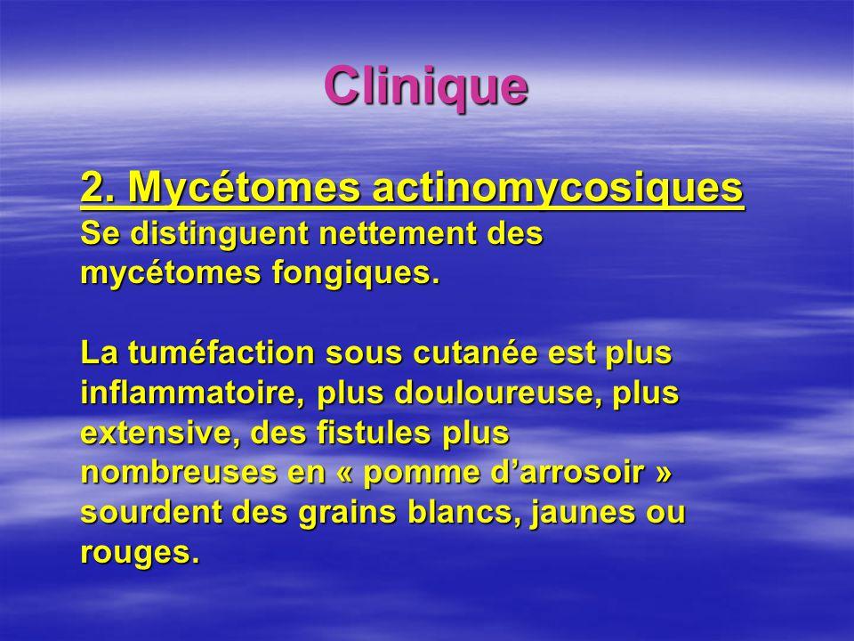 Clinique 2. Mycétomes actinomycosiques Se distinguent nettement des